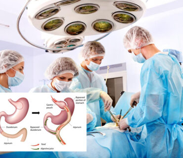 how-does-bariatric-surgery-work-1593429423