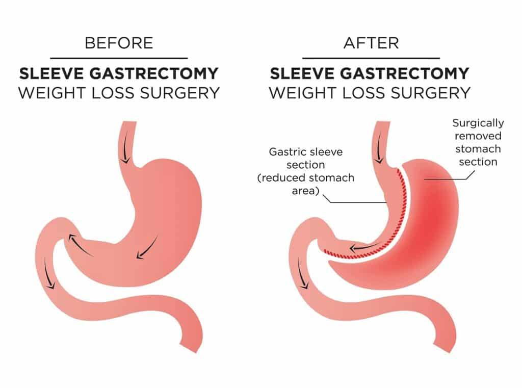 Sleeve Gastrectomy Abu Dhabi