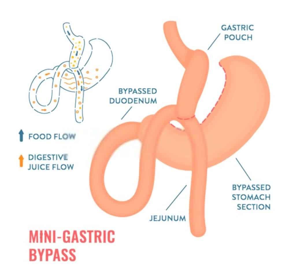 Mini gastric Bypass UAE